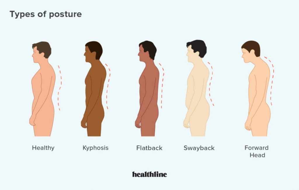A rounded shoulder is a mark of bad posture