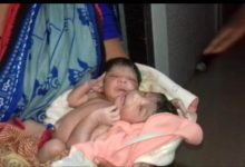 Odisha: Rare conjoined twins born with two legs, three arms
