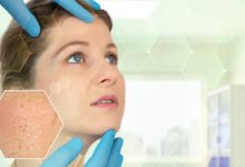 Artificial Intelligence to self-diagnose skin conditions? Google to launch tool soon