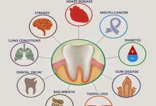 Can poor oral hygiene cause cancer?