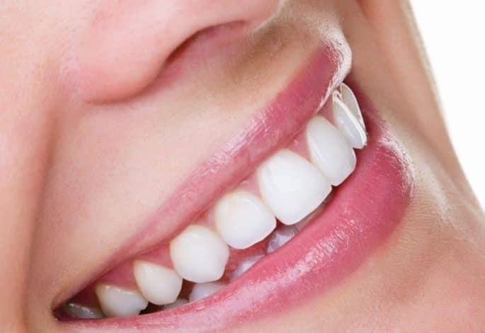Is teeth whitening really effective?