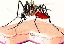 Kolkata sees cases of malaria without fever; a doctor talks about the 'weird' disease